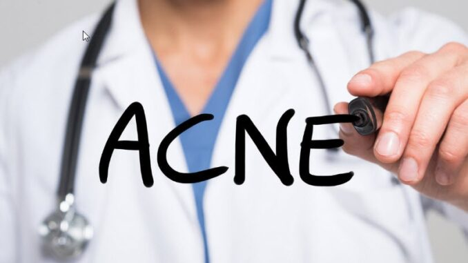 A doctor writing acne word.