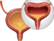 Overactive Bladder/Urinary Incontinence Medication Category