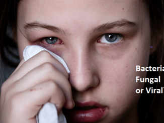 """The girl have eyes problem- red eye and """"Bacterial Fungal or Viral"""""""